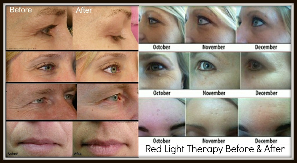 Red LED light therapy before and afters