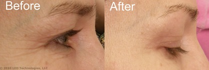 Crows Feet Before and After Clincial 0v8
