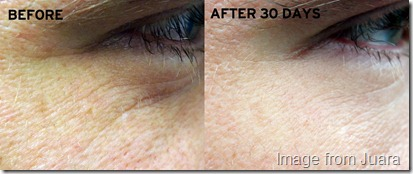 Juara Eye Cream Before and After