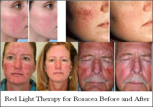 LED light therapy before and after for rosacea