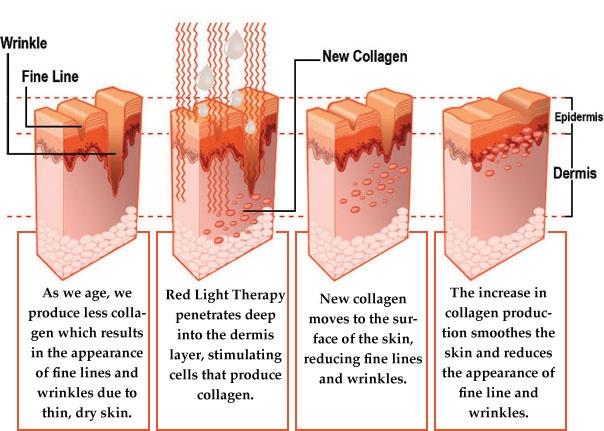 Skin Graph