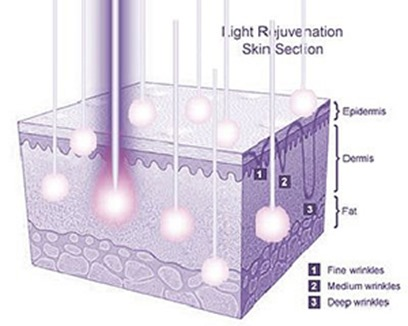 LED treatments in the skin