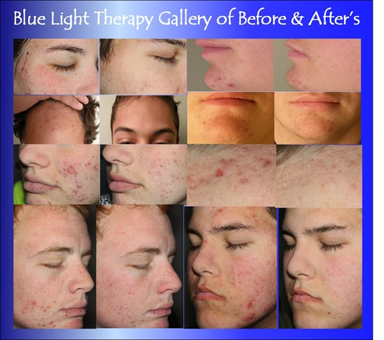 blue light therapy before and after shots