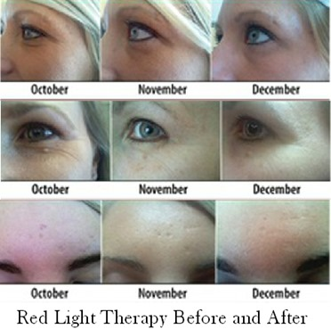 red light therapy before and after