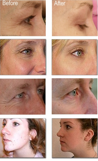 Red Light Therapy Before And After Reveal Great Skin