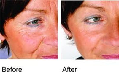 Facial Secret before and after