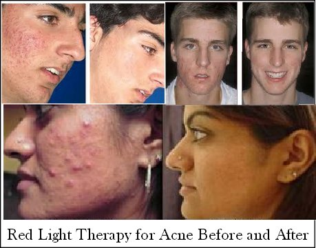 light therapy for acne before and after