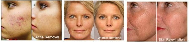 Red Light Therapy Reduce Wrinkles Age Spots Acne Amp More
