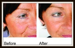 Wrinkles before and after with Facial Secret