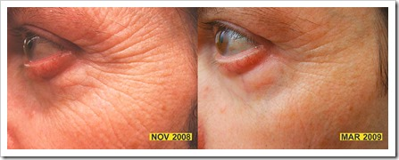 LED light therapy before and after eye area