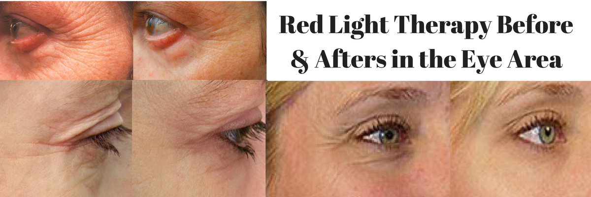 Red Light Therapy Before & Afters in the Eye Area